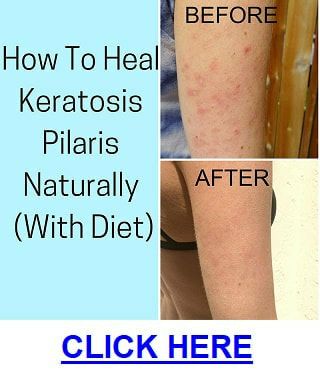 Can you get rid of keratosis Pilaris Picture